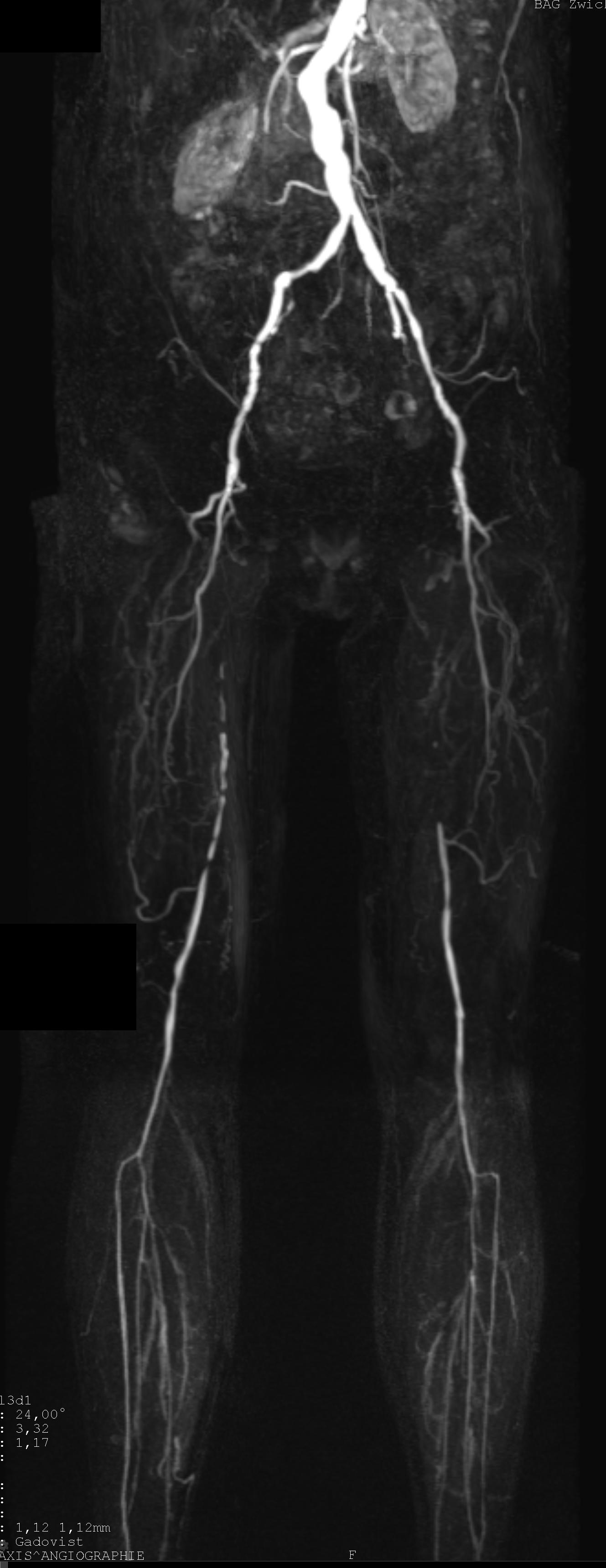 MR-Angiographie der Beingefäße